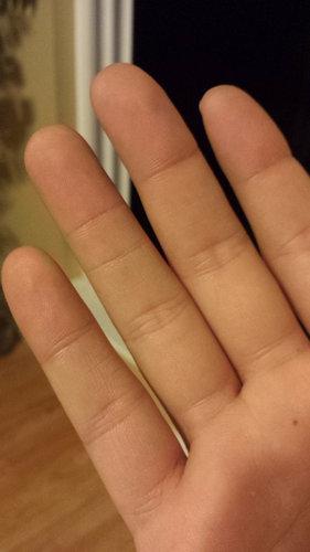 指に余分なシワ03