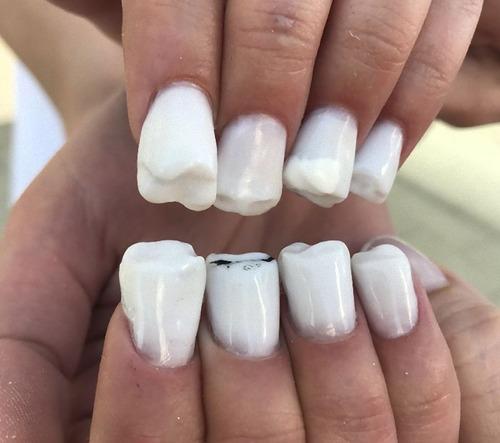 歯のネイル01