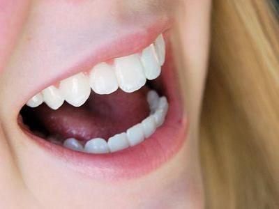 歯周病、口臭、歯の隙間が気になる人はコレ