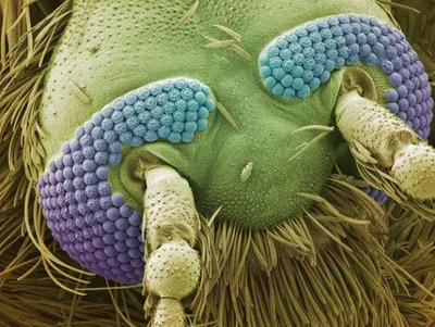 電子顕微鏡の世界11