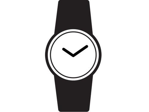ロレックスの時計vsカエル時計