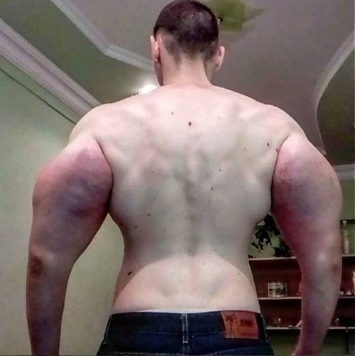 注射で偽の筋肉ムキムキになったロシア男性04