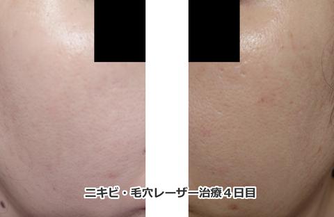 ロングパルスアレキサンドライトレーザーニキビと毛穴治療