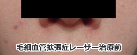 毛細血管拡張症のレーザー治療