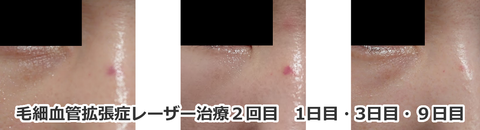 毛細血管拡張症レーザー治療