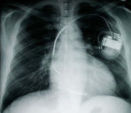 mice-fuel-cells-implants-pacemaker_20855_big