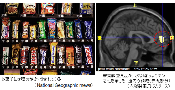 Sugar-affects-brain-vending-machine
