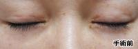 20181129_二重切開修正閉瞼手術前