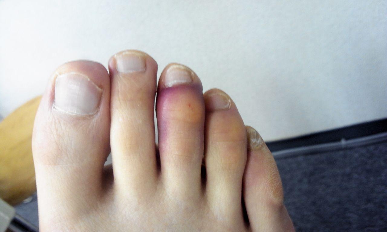た 内出血 の 指 ぶつけ 足
