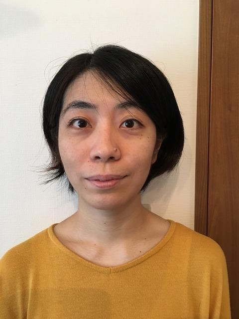 上田式美容鍼体験記③befor