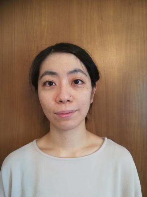 上田式美容鍼®体験記 2回目施術前jpg