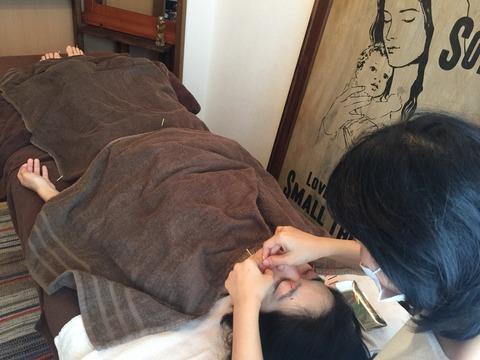 上田式美容鍼®体験記③手足やお腹にも鍼です