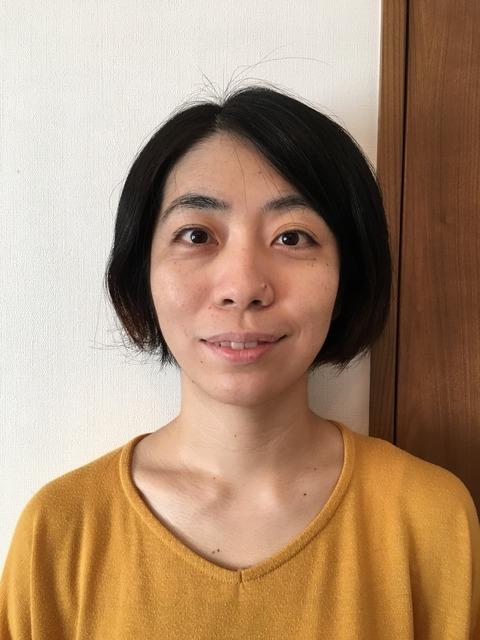 上田式美容鍼®体験記③after
