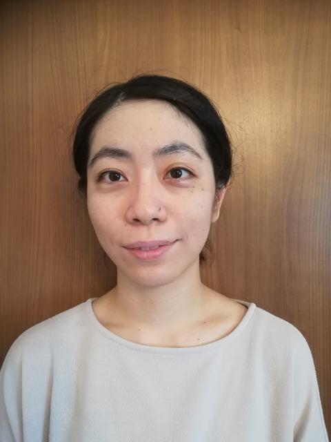 上田式美容鍼®体験記2回目 後jpg