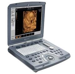 超音波診断装置1