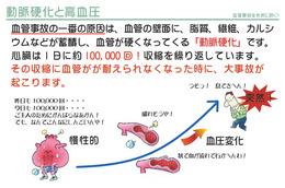 動脈硬化と生活習慣病