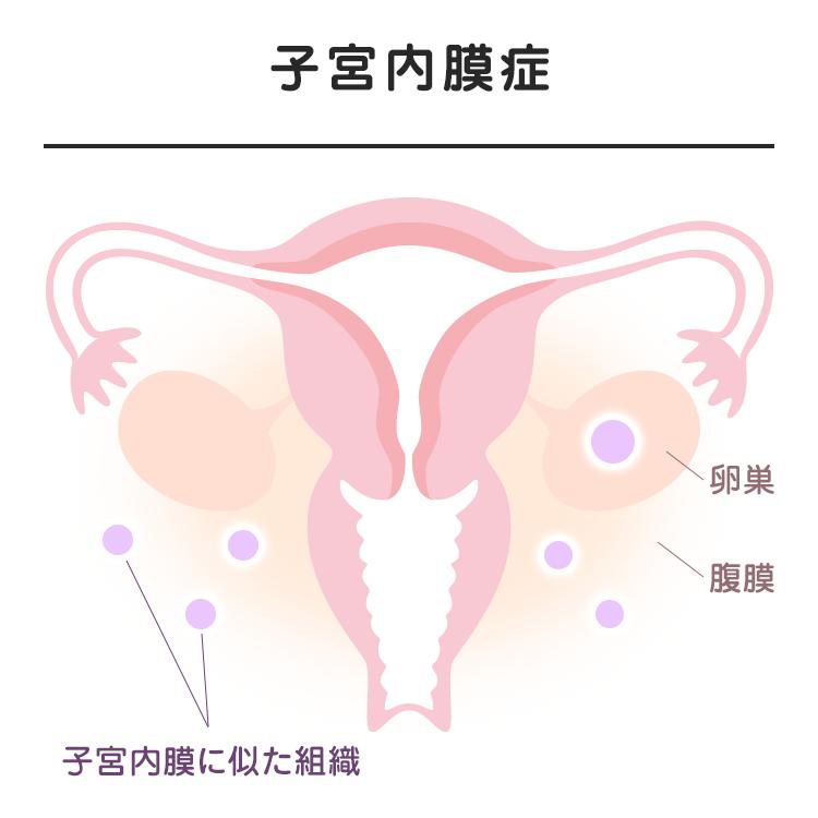 03_03_子宮内膜症