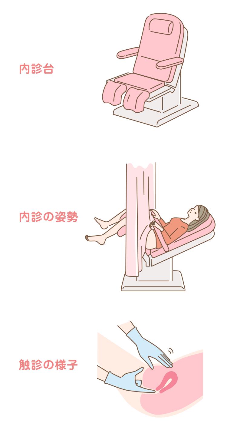 04_04_内診