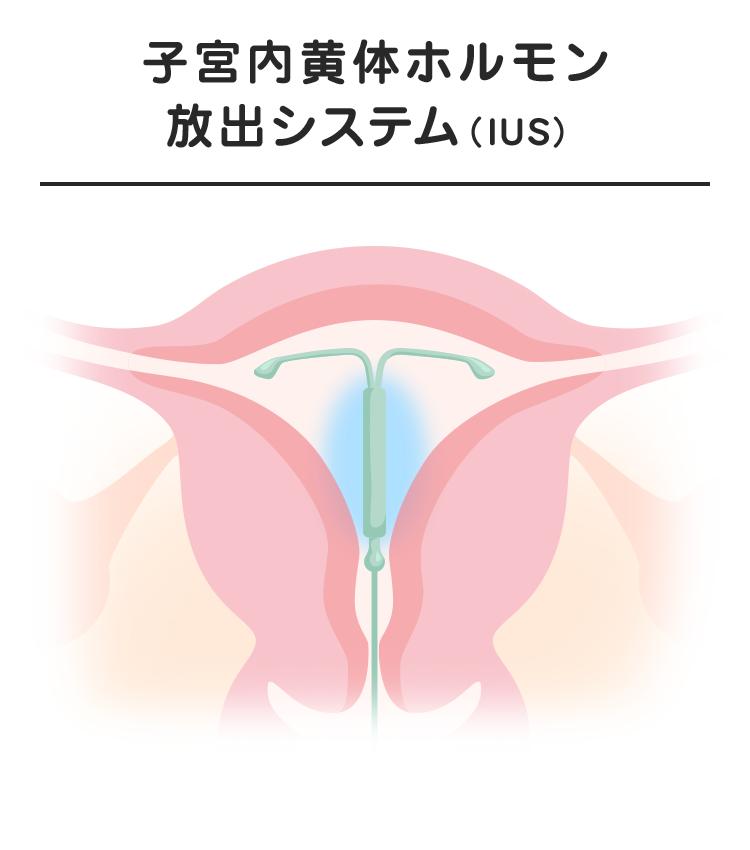 05_03_子宮内黄体ホルモン放出システム