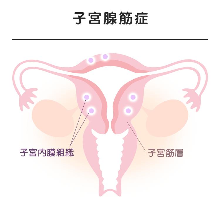 03_04_子宮腺筋症