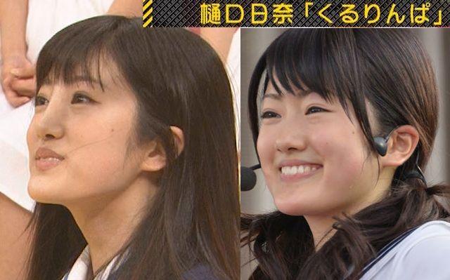 乃木坂46樋口日奈、整形20150824