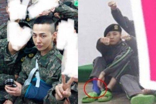 """【BIGBANG NEWS】""""入隊中""""BIGBANGのG-DRAGON、腕にもサポーター着用?近況写真に心配の声"""