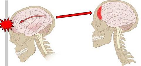 concussion-impact