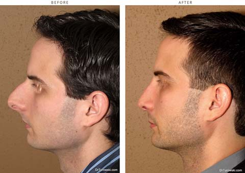 rhinoplasty-before-and-after-pictures-24