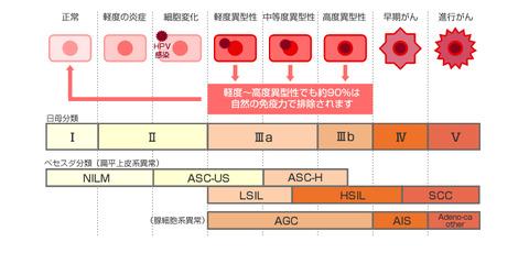 examination_uterinecancer_dgm_02