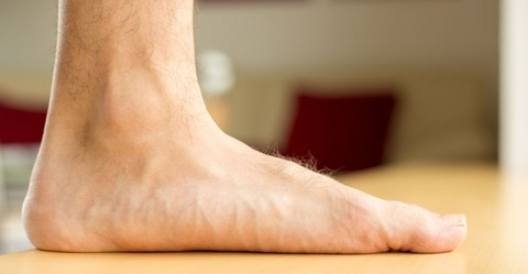 Bounce-podiatry-Flat-Feet-information-800x415