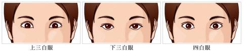 img_sanpaku_yonpaku