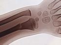 骨粗鬆症 症状 動脈硬化