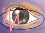 網膜剥離 症状