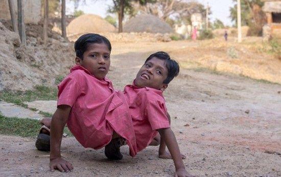 インドの結合双生児は4本の腕と2本の足でたくましく生きている3