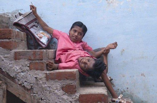 インドの結合双生児は4本の腕と2本の足でたくましく生きている2