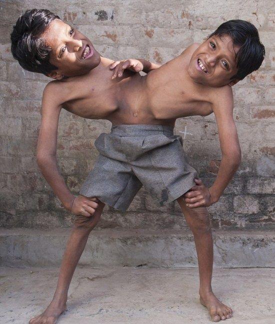 インドの結合双生児は4本の腕と2本の足でたくましく生きている1