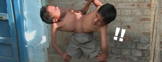インドの結合双生児は4本の腕と2本の足でたくましく生きている