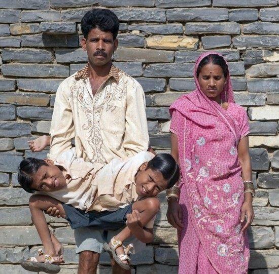インドの結合双生児は4本の腕と2本の足でたくましく生きている5