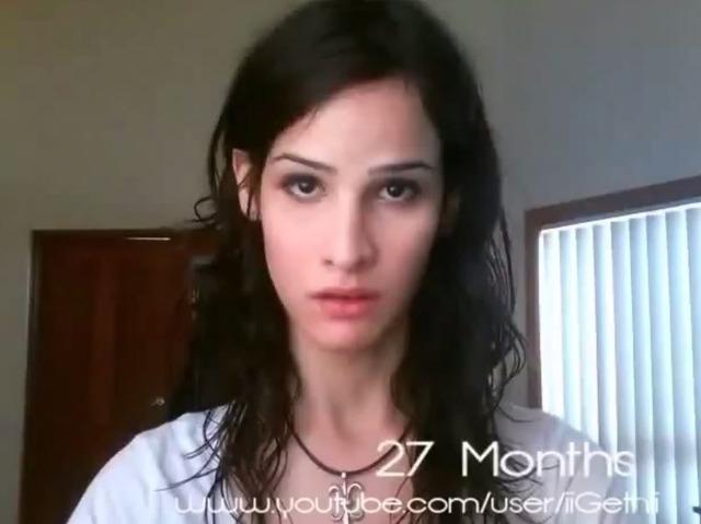 女性ホルモン 投与007