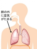pneumothorax1