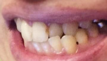 29_3 - 虫歯部分