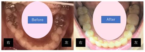 銀歯前後(下)