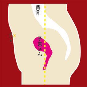 子宮 筋腫 注射
