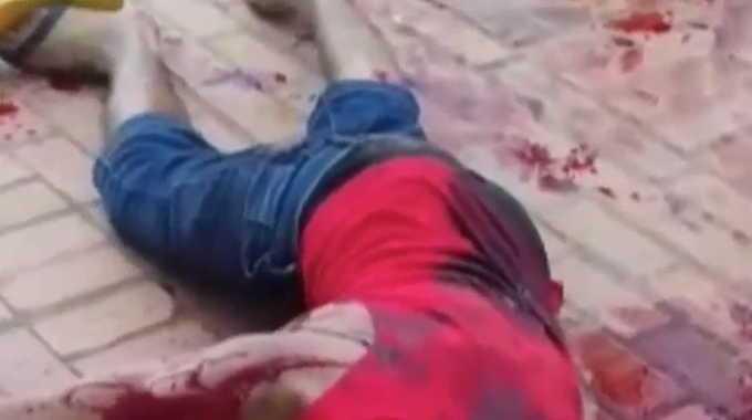 【閲覧注意】 路上で刺された男性が苦しんでいます。