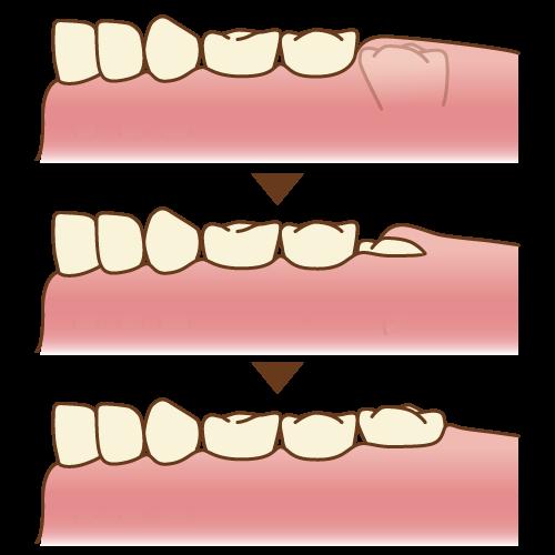 molar_6yo10