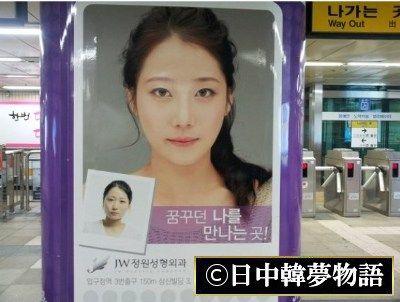 韓国 整形広告 (6)
