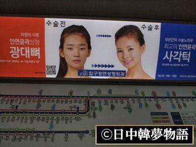 韓国 整形広告 (7)