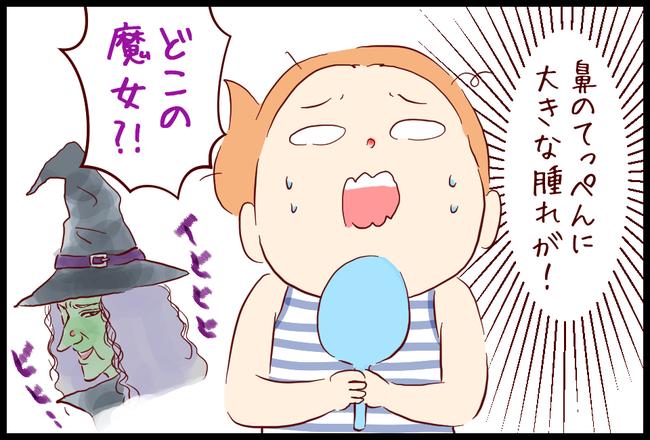 ニキビ03