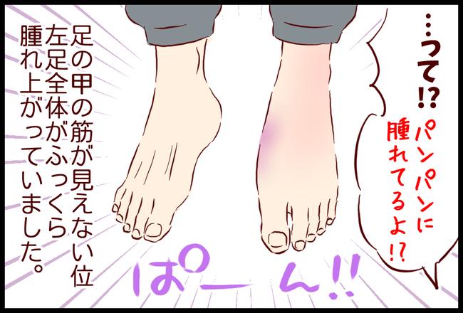 ねんざ11