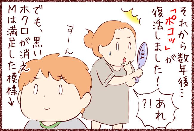 ホクロ05